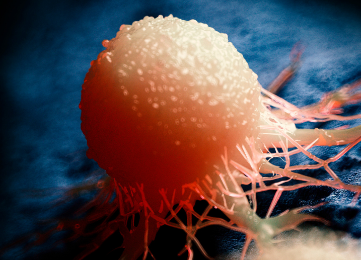 Cáncer de próstata: causas, síntomas, diagnóstico y tratamientos