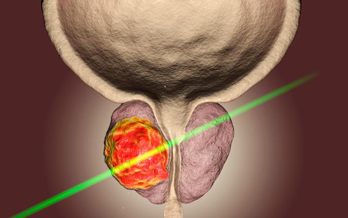Hipertrofia prostática benigna: ¿Qué es y cómo tratarla?
