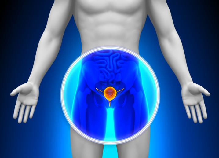 Agrandamiento de la próstata: qué alimentos evitar