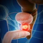 Cómo reconocer y tratar la prostatitis